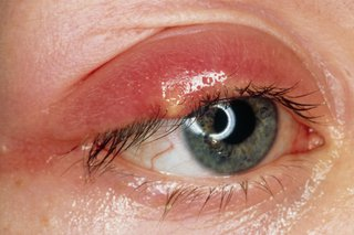 Picture of a stye on the upper eyelid