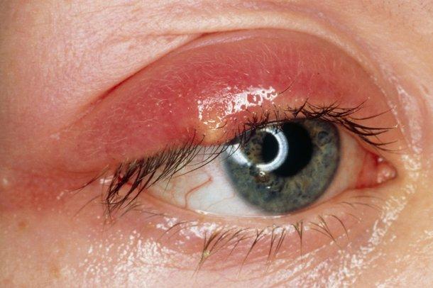 Swollen stye leaking pus on upper eyelid