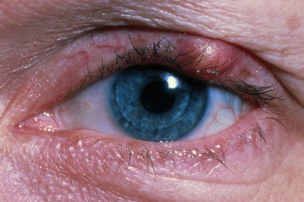 Stye on upper eyelid