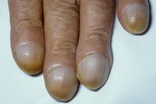 Clubbed fingernails that curve over rounded fingertips