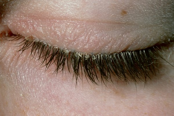 Closed eye with flakes of skin and crusts along the eyelid and eyelashes.