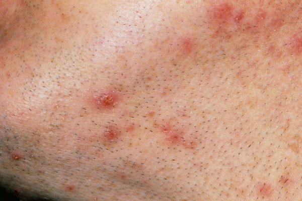Close up on red ingrown hairs on a man's neck and chin