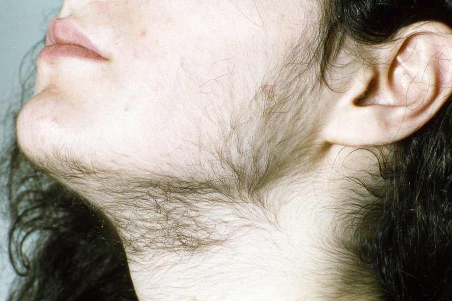 Picture of woman with hirsutism