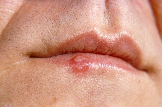 Cold sore on lower lip