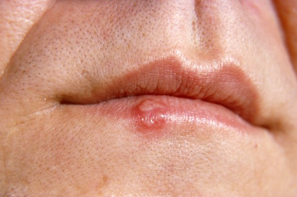 Picture of a cold sore on a person's lip