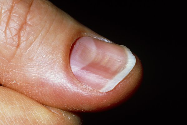 Spoon-shaped nails that curve inwards (koilonychia) can be a sign of iron-deficiency anaemia