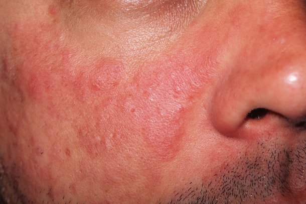 Picture of a man with lupus rash affecting his skin