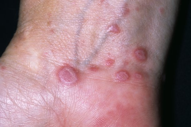 Lichen planus on the inside of the wrist