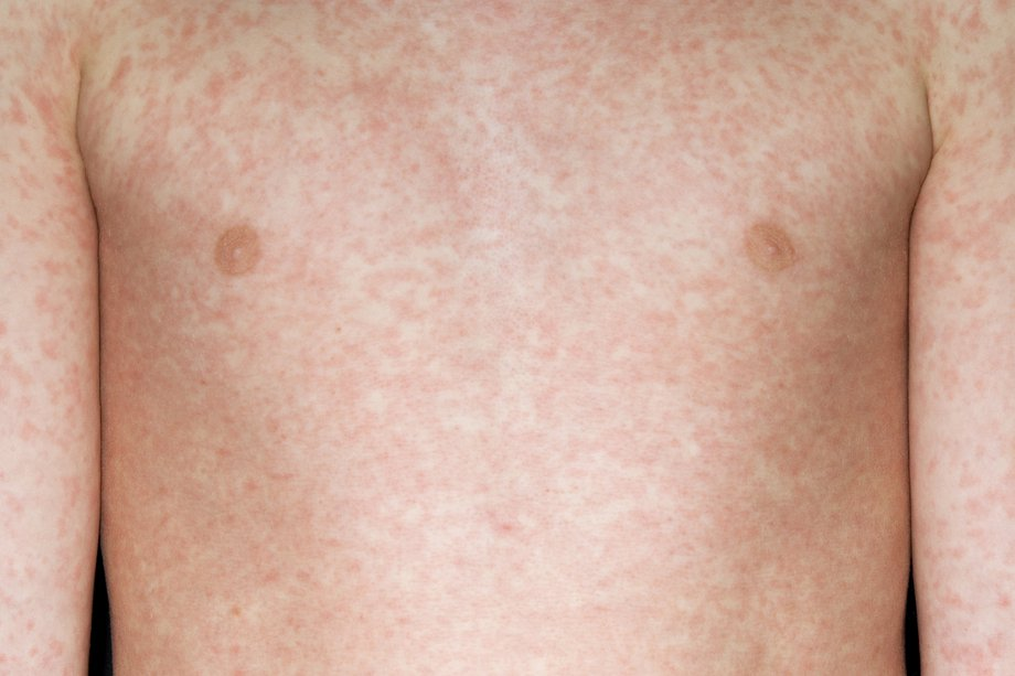 Picture of measles rash