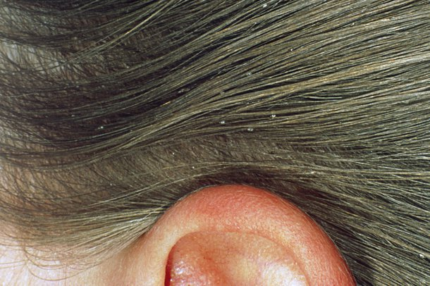 lice eggs how to tell