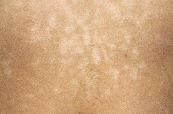 Picture of pityriasis versicolor patches