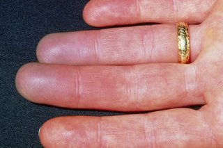 Red fingers caused by Raynaud's