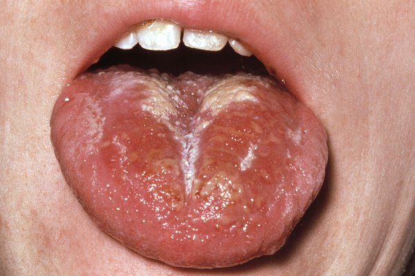 A white coating also appears on the tongue. This peels, leaving it red and swollen (