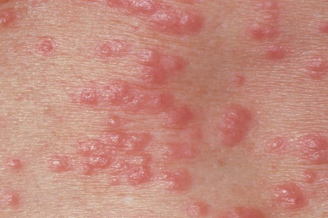 Red spots on the skin caused by scabies