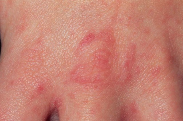 A scabies rash on the hand