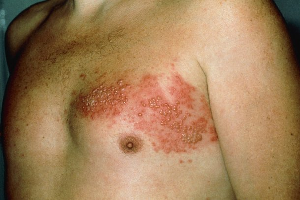 A red, blotchy rash in a band on one side of the body