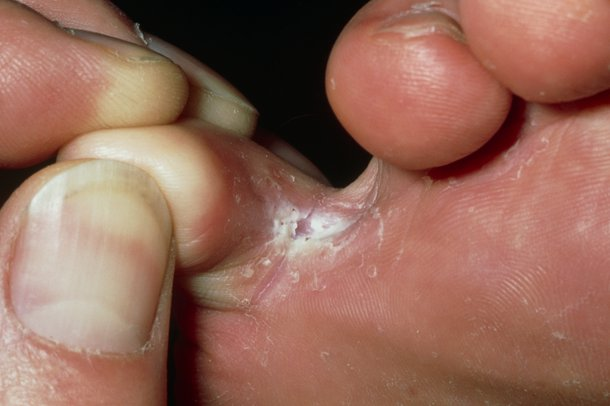 Picture of athlete's foot