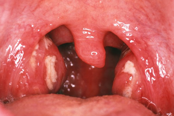 Tonsils with pus-filled spots at the back of the throat.