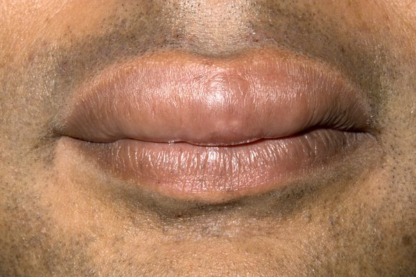 Picture of swollen lips caused by angioedema