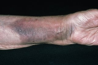 Picture of a broken wrist