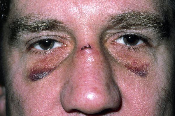 A man with two black eyes and a cut on his nose