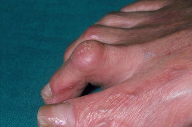 A foot with hammer toe
