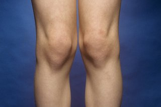 Picture of knock knees