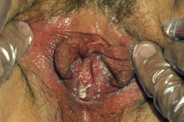 A vagina with white discharge