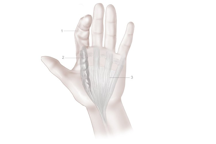 Illustration of Dupuytren's contracture