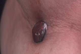 Picture of nodular melanoma.