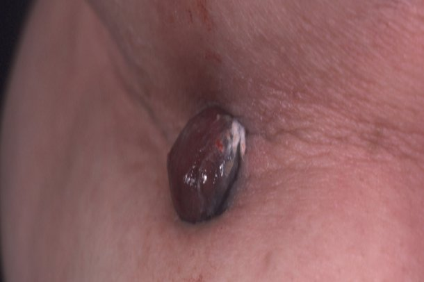Picture of nodular melanoma