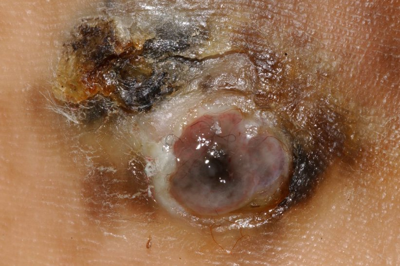 Picture of acral lentiginous melanoma