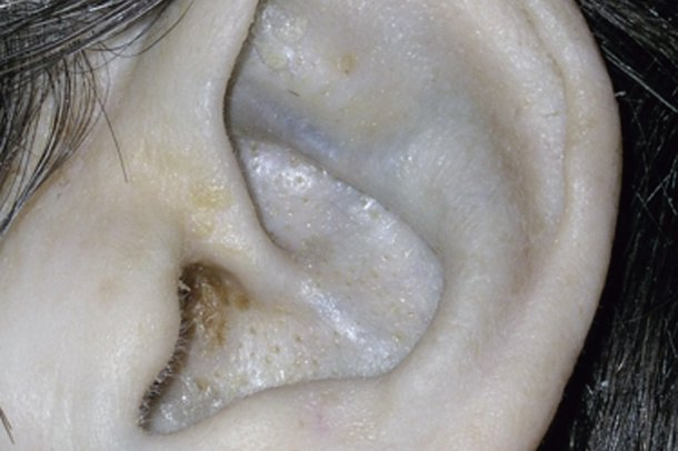 Picture of ear affected by alkaptonuria