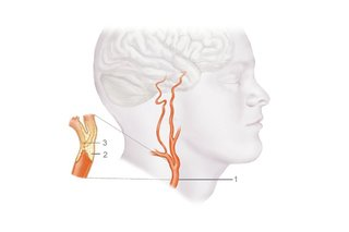 Picture of a blocked carotid artery