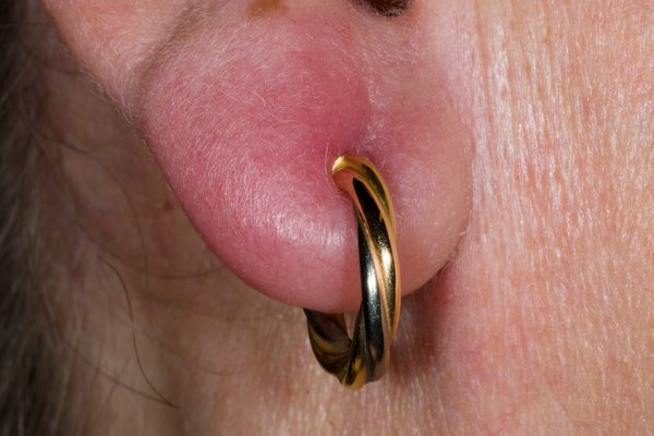 Close-up photo of a person's ear lobe with a gold hoop earring. The ear lobe is red and swollen.