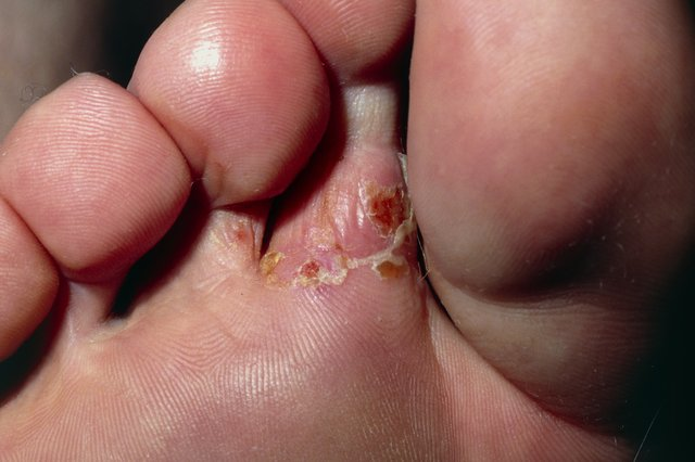 Red, flaky patch on foot caused by athlete's foot
