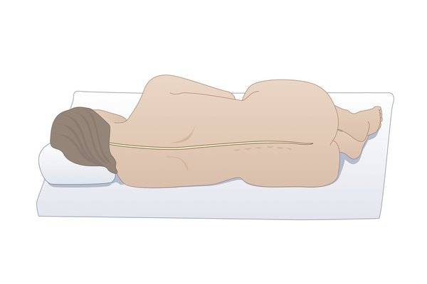 A person lying on their side for a lumbar puncture