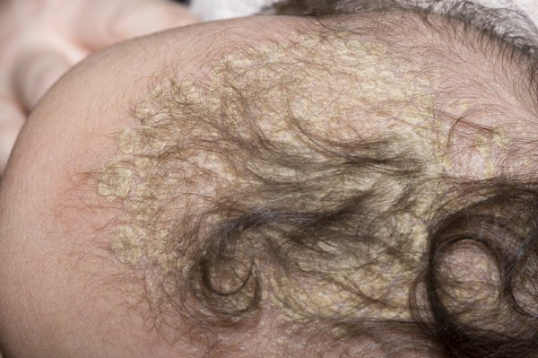 Cradle cap can look like patches of greasy and yellow crusts.