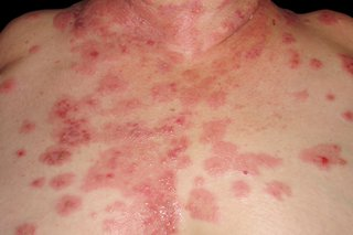 Lots of sore, red patches with small blisters spread on white skin spread across a woman's chest