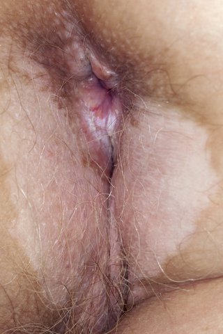 A large, discoloured, white patch of skin just below and beside the opening of the anus