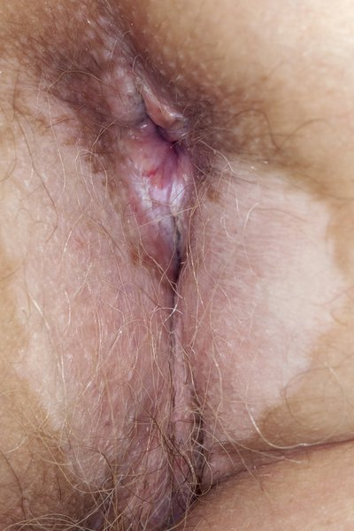 A large patch around the anus.