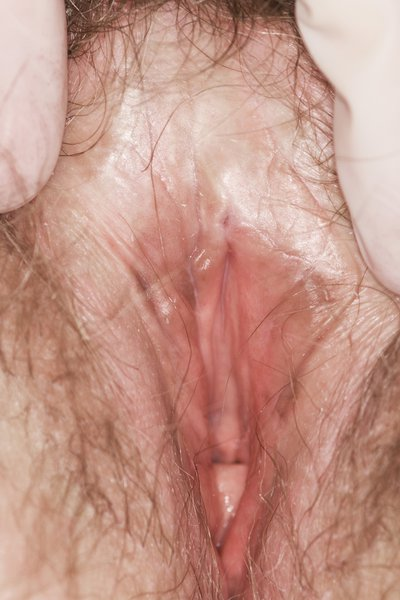Woman's vulva being held-open, showing a white patch between the pubic hair and clitoris.