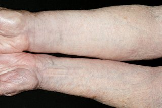 Swollen arm caused by oedema