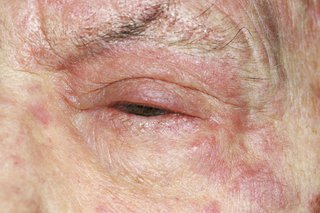 Red, swollen eyelid with a red rash on the surrounding skin