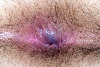 Piles (haemorrhoids) pink or purple.