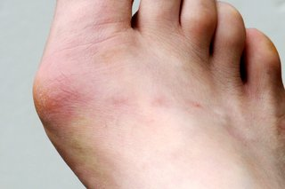 Red and swollen bunion