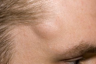 Lipoma on side of forehead