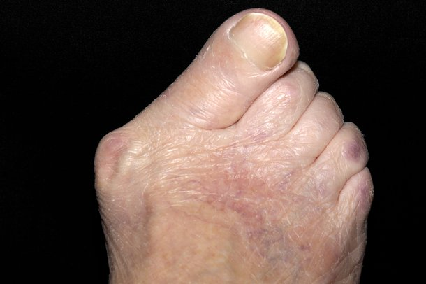 Bunion on right foot