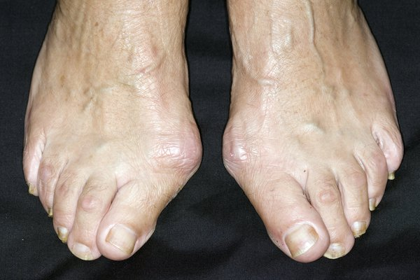 Hard lumps on the sides of your feet, by your big toes