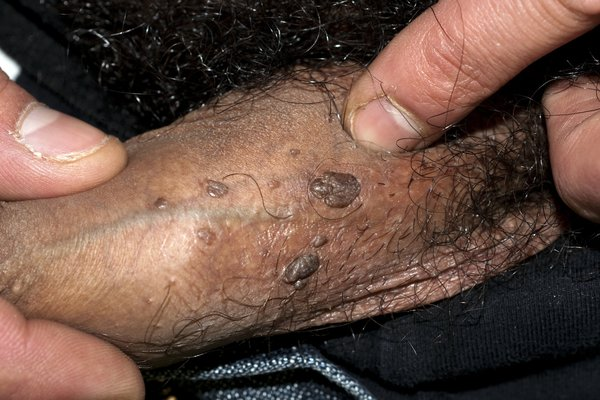 Flat, smooth warts on penis